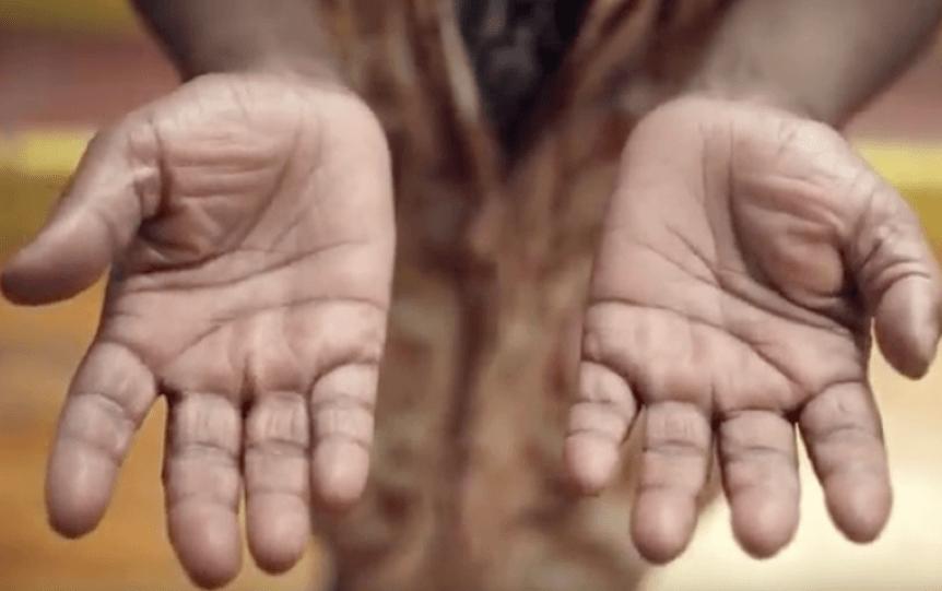 'Hands